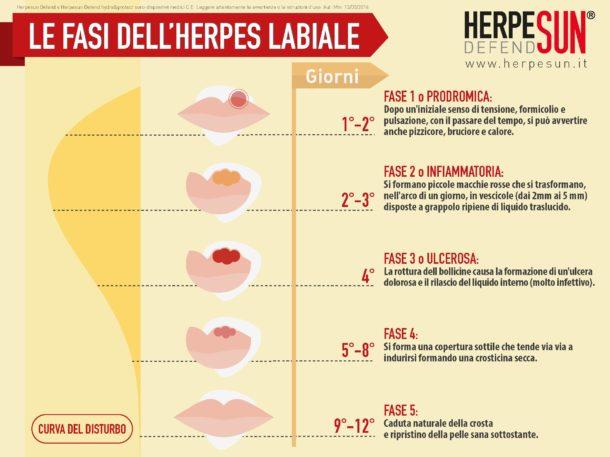 le-fasi-dell'herpes-labiale